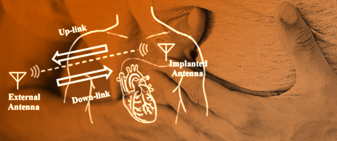 Wireless Power Transfer Approaches for Medical Implants: A Review