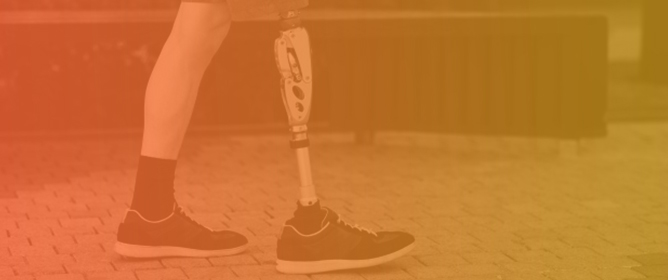 Kinetics of Lower Limb Prosthesis: Automated Detection of Vertical Loading Rate