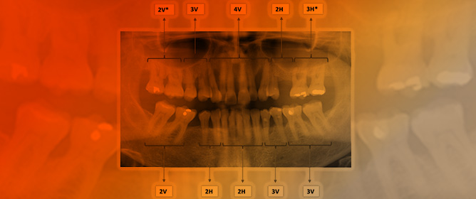 Development of a Radiographic Index for Periodontitis