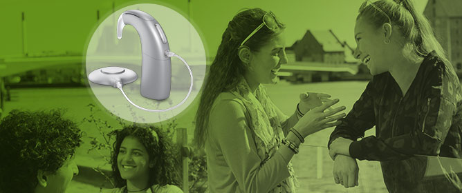 Adult Users of the Oticon Medical Neuro Cochlear Implant System Benefit from Beamforming in the High Frequencies