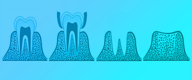 Materials and Manufacturing Techniques for Polymeric and Ceramic Scaffolds Used in Implant Dentistry