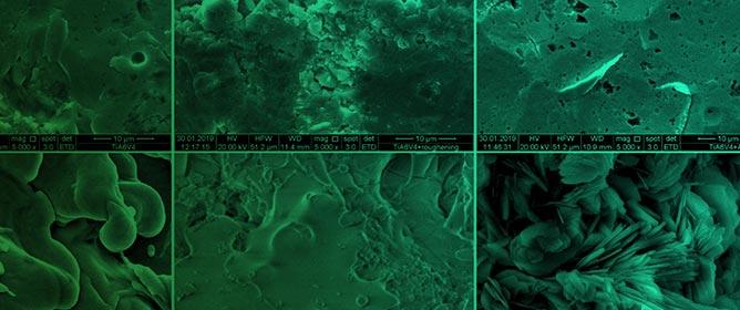 TiAl6V4 Alloy Surface Modifications and Their Impact on Biofilm Development of <em>S. aureus</em> and <em>S. epidermidis</em>