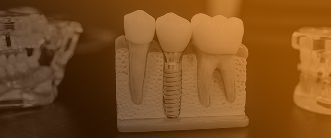 Diagnosis of Biofilm-Associated Peri-Implant Disease Using a Fluorescence-Based Approach