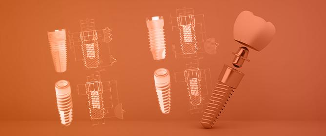 Dental Implant Geometry Influence on Bone Remodelling through a Numerical Algorithm