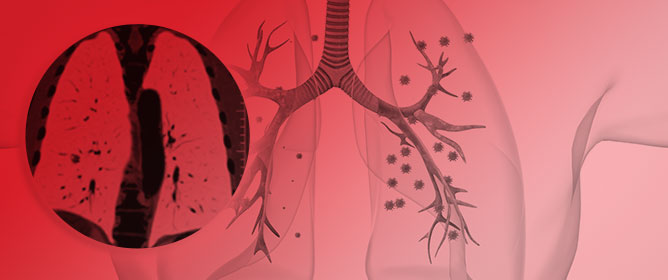 Current Evidence for Stereotactic Body Radiotherapy in Lung Metastases