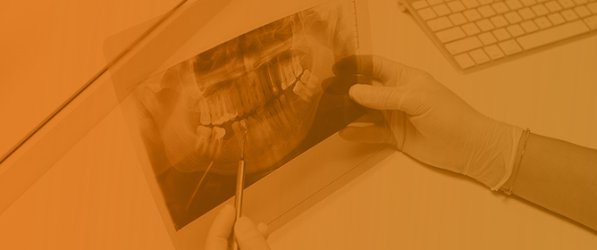 Periodontal and Peri-Implant Diseases and Systemically Administered Statins: A Systematic Review